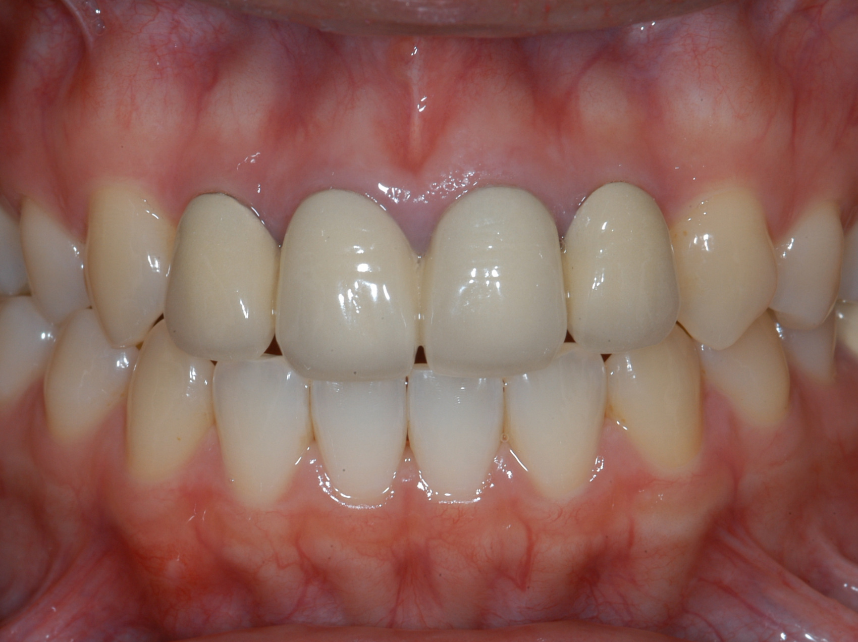 Dental Caps And Bridges Dental Reconstruction For Teeth